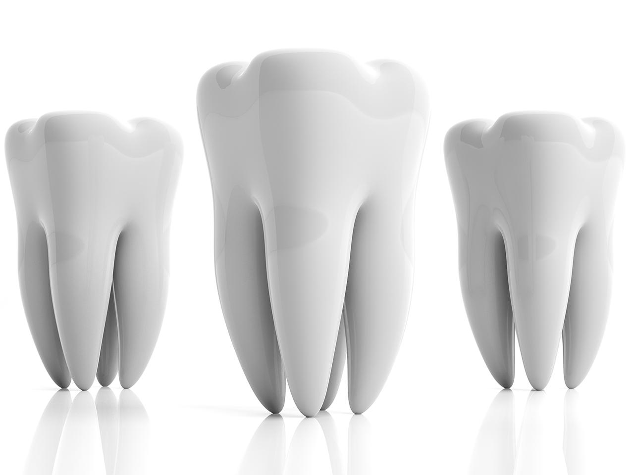 sbiancamento-dentale-3